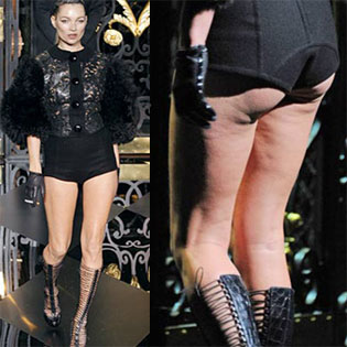 Kate-Moss-Cellulite