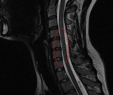 MRI CERVICAL SPINE 0003