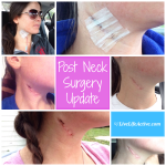 Post Neck Surgery Pictures