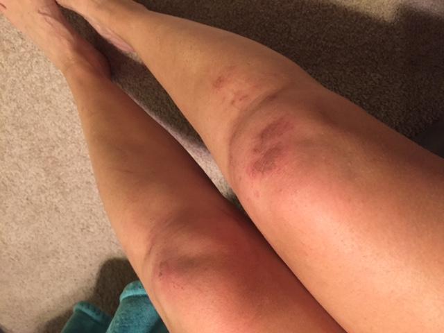 Rugged Maniac 10k Charleston injury